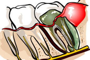 Talk about cavity creeps! A tooth abscess is a sac-load of thick, yellowish-greenish-whitish pus that's full of bacteria.