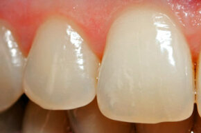 Tooth enamel is the hardest tissue our bodies produce. But if we don't take care of it, certain substances can wear it down and we can lose it forever.
