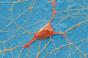 We are already transplanting neurons -- and there might be more breakthroughs on the horizon.