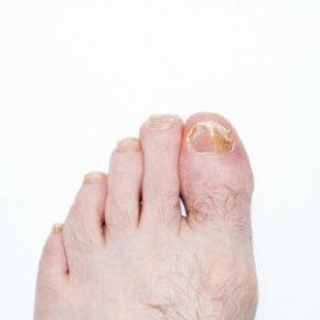 Viruses, fungi and bacteria cause nail infections. See more pictures of skin problems.
