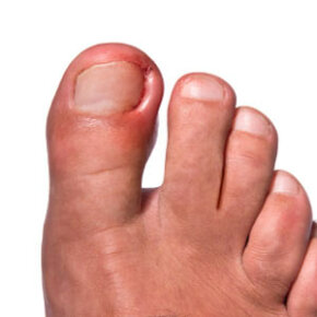 Ingrown nails can be painful and can become infected if they are left untreated. See more pictures of skin problems.