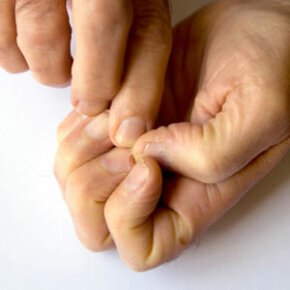 Personal Hygiene ­Image Gallery Repairing cracked fingernails takes time. See more personal hygiene pictures.