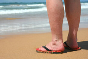 Varicose veins are a common sign of aging, but certain conditions can cause them, too. See more skin problem pictures.