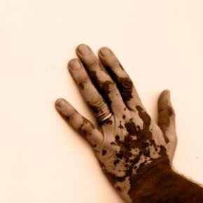 Vitiligo occurs when areas of the skin can no longer produce the pigment melanin. See more pictures of skin problems.