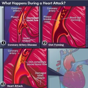 The three steps often responsible for heart attacks