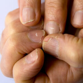 Personal Hygiene ­Image Gallery A condition called leukonychia can cause white spots on fingernails. See more personal hygiene pictures.
