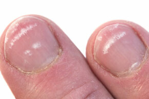 The occasional white spot on a nail typically isn't a clue to anything more than a bit of nail trauma.