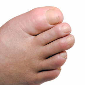 The calling card of gout: the swollen big toe.