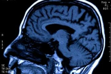 Doctors often use MRI scans to check the brain tissue damage of a comatose patient.