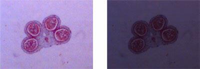 Image of pollen grain under good brightness (left) and poor brightness (right)