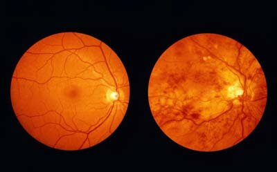 Magnified retina of healthy eye and retina of diabetic eye (mottled)