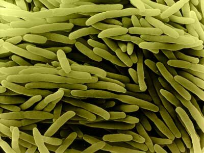 You don't want to eat meat that's crawling with these little E. coli buggers.