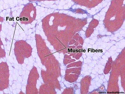 Cross section of a skeletal muscle (200x) showing the muscle fibers (red) and the fat cells (white)