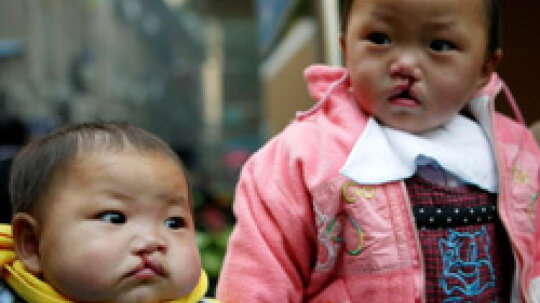 Can cleft lip and cleft palate can be corrected?