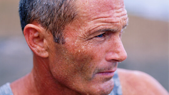 10 Conditions That Make People Sweat Too Much