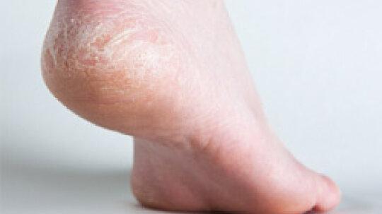 Top 5 Foot Moisturizing Tips for Men