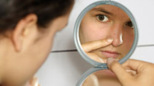 Acne Remedies: Fast Facts