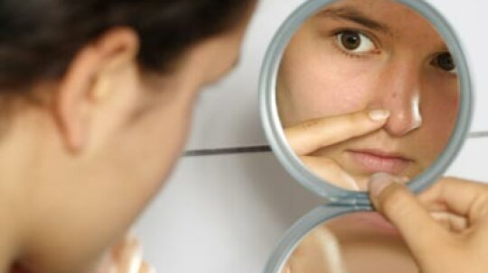 Quick Tips: Red Blotches on Your Face