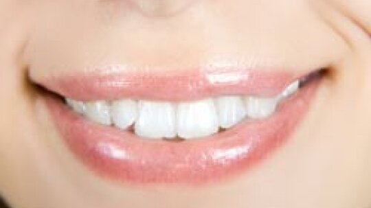 """A """"Smile Lift"""" Can Take Years Off Your Looks"""