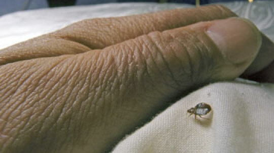 What to Do About a Bed Bug Infestation