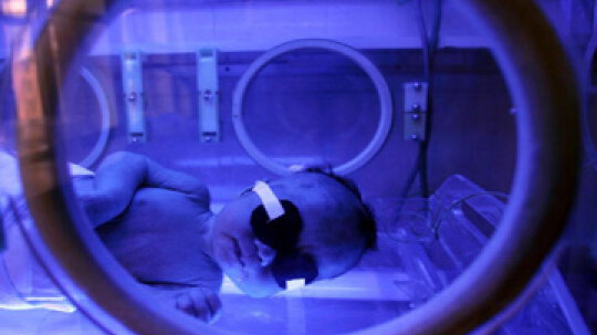 Why Are Some Babies Treated With Bili Lights?