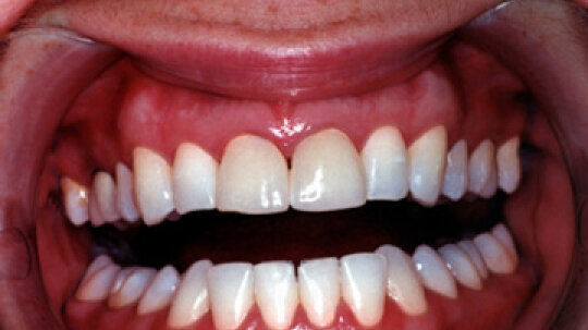 Why do I have black gums?