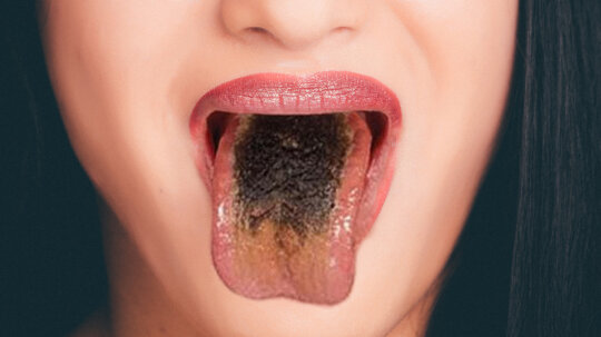 Black Hairy Tongue: It's Gross, but You'll Live
