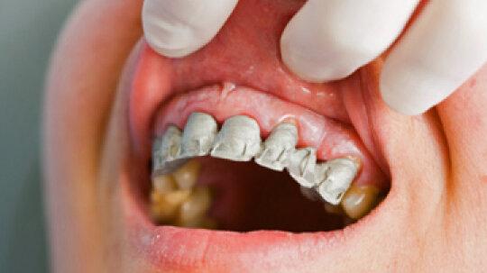 Why do my gums bleed when I brush my teeth?