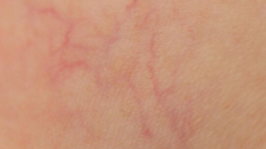What causes broken capillaries on my face?