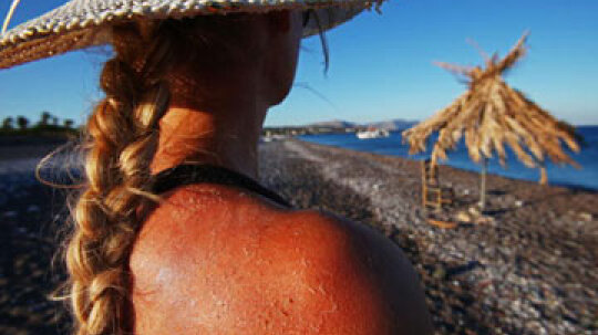 How to Cleanse When You Have a Sunburn