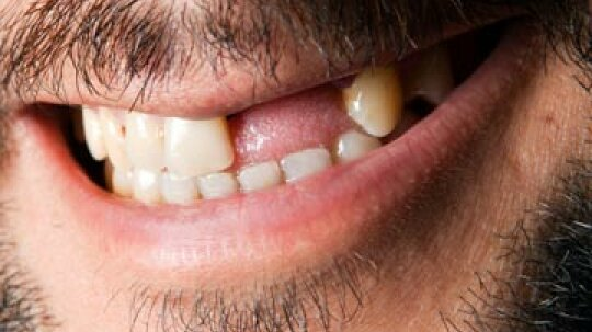What diseases are associated with tooth loss?
