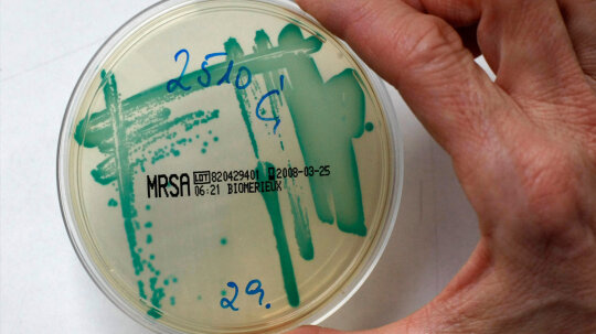 Can drug-resistant bacteria lose their resistance?