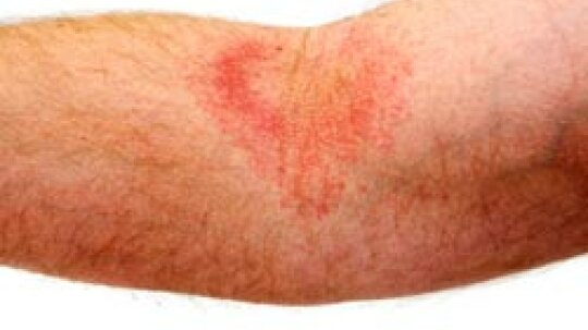Quick Tips: Moisturizing Your Eczema