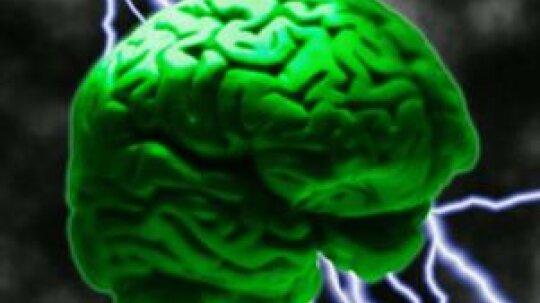 Epilepsy Overview
