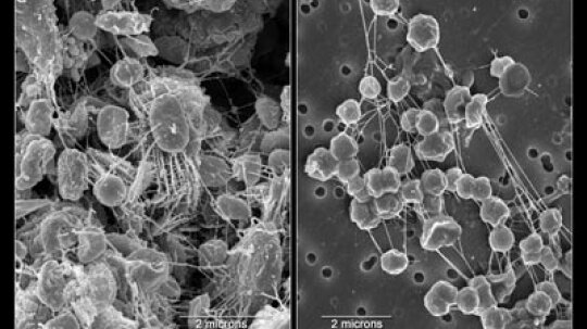How Extremophiles Work