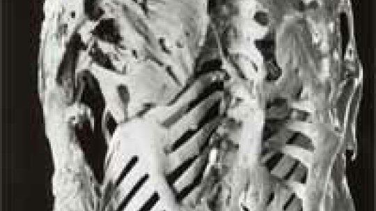 How Fibrodysplasia Ossificans Progressiva (FOP) Works
