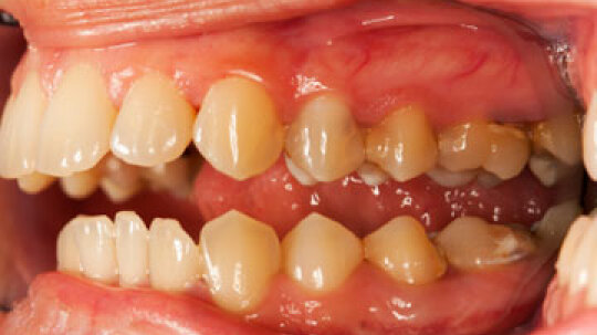 Is gingivitis contagious?