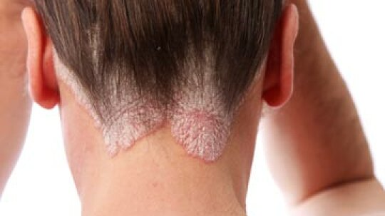 At a Glance: Scalp Sores