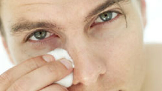 How to Reduce Under-eye Puffiness
