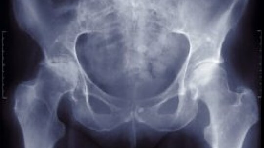 Osteoporosis Diagnosis and Risk Factors