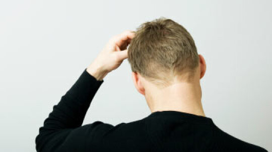 5 Surprising Facts About Itchy Scalp