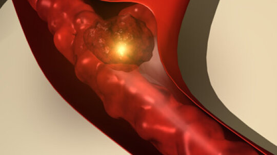 What is laser clot busting?