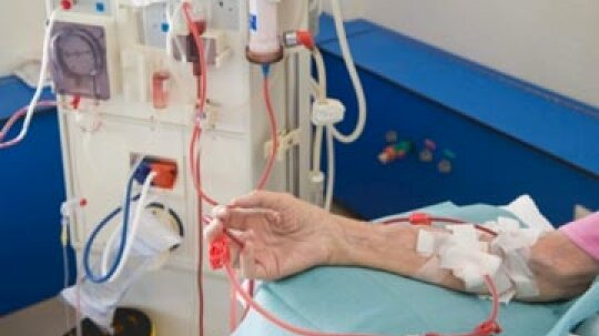 Plasmapheresis Procedure