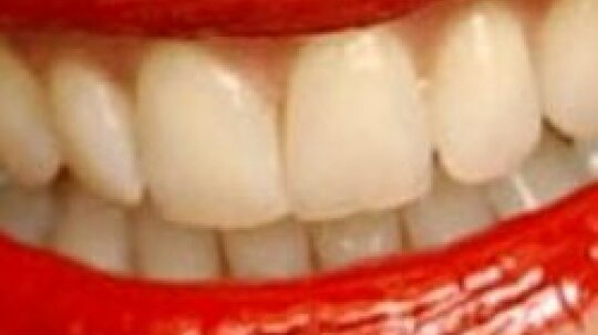 How do people pull large objects with their teeth?