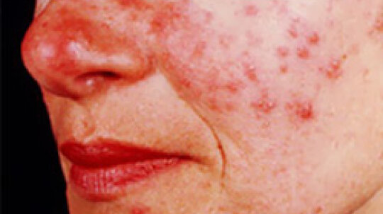 5 Common Causes of Skin Irritations on the Face