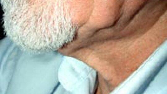 Sagging Skin Overview