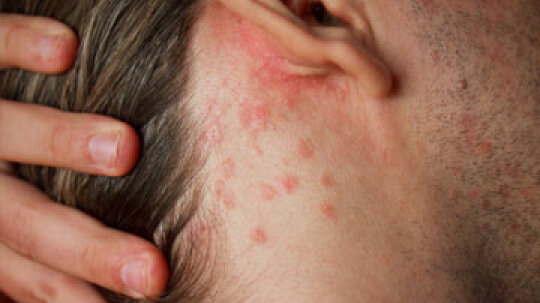 Scalp Psoriasis Overview