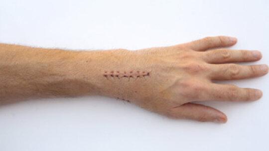 How Scars Work