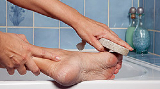 How to Get Rid of Dry Skin on Your Feet