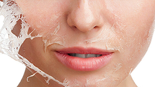 How to Stop Skin from Peeling on Your Face